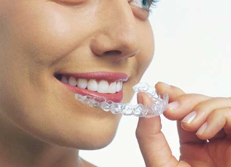Woman with Invisalign tray